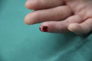 40歳 女性 右第4指皮膚欠損創初診